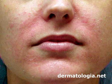 Resultado de imagem para dermatite perioral